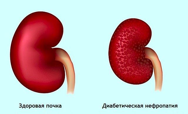 Солевой диабет