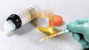 Анализ на эритроциты